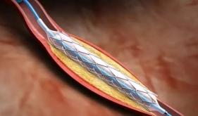 经皮冠状动脉介入治疗(PCI)
