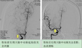 急性缺血性卒中大血管栓塞血管再通治疗(动脉取栓治疗)