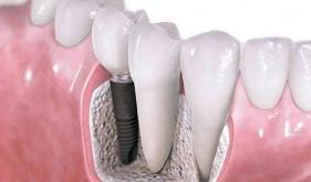 口腔种植术